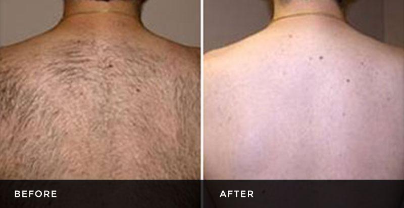 Laser bikini hair removal 10