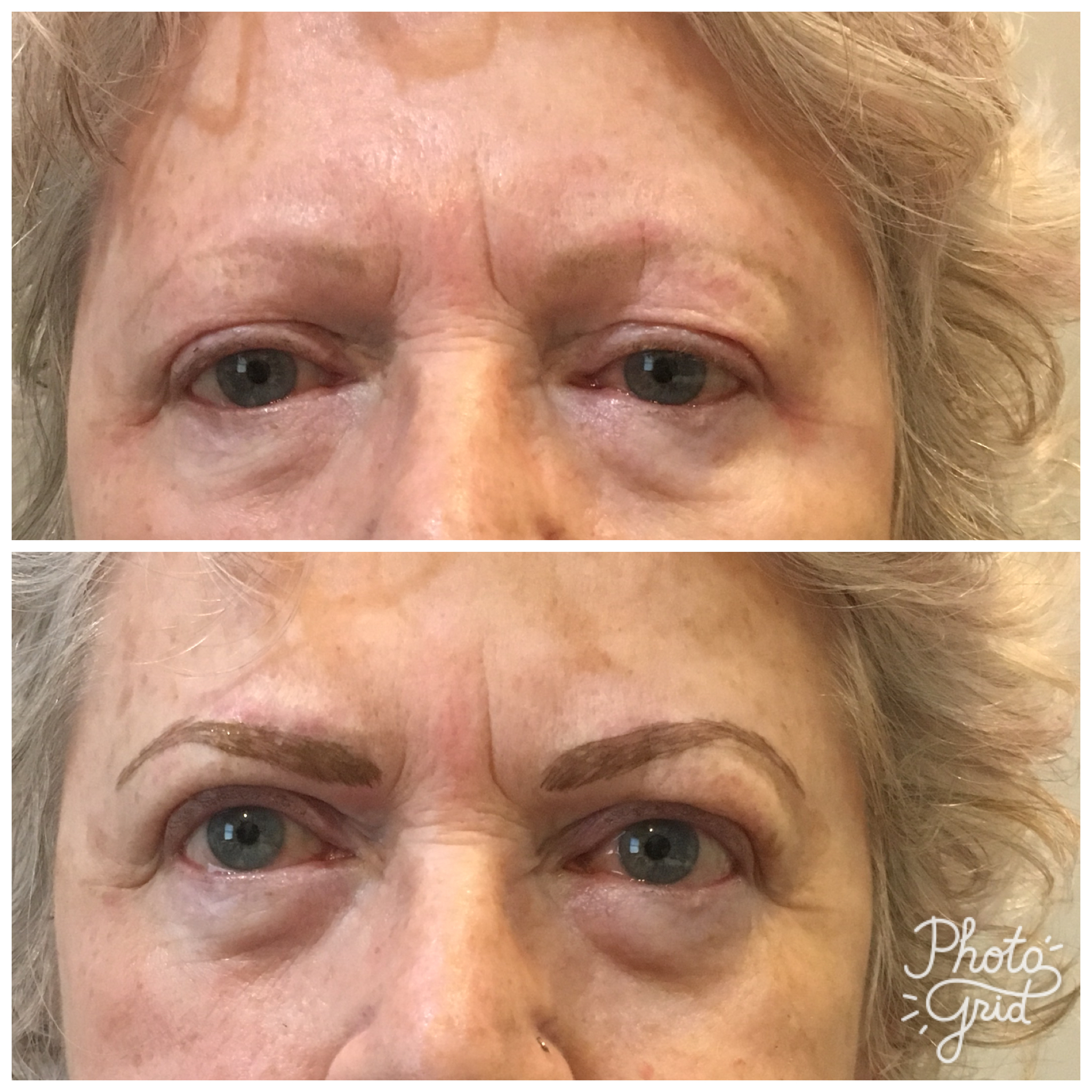 Eyebrow Microblading Tri County Laser Center Eye Brow Before And After Gallery