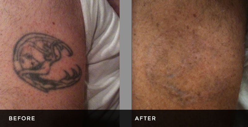 Tattoo Removal – Latest in Pico Second Technology – Tri-County Laser