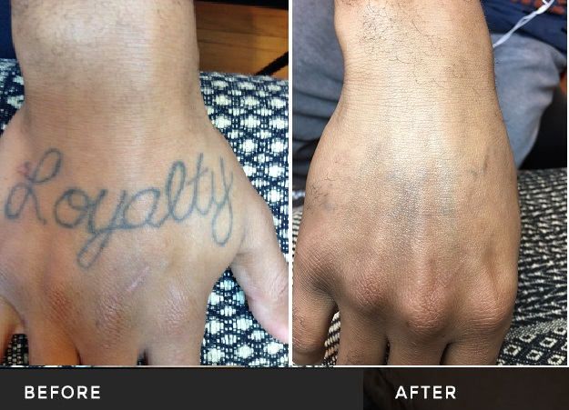 Tattoo Removal – Latest in Pico Second Technology – Tri-County Laser ...